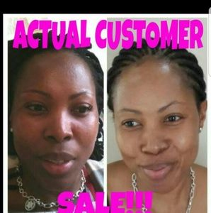 Awesome results kojic lightening soap